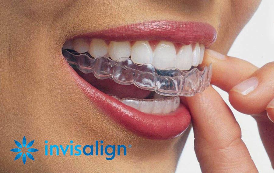 Por qué elegir el tratamiento de Invisalign? - Southern Delaware Dental  Specialists