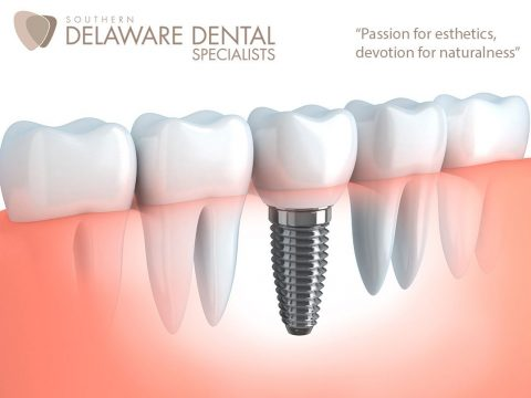 Dental Implants in Georgetown