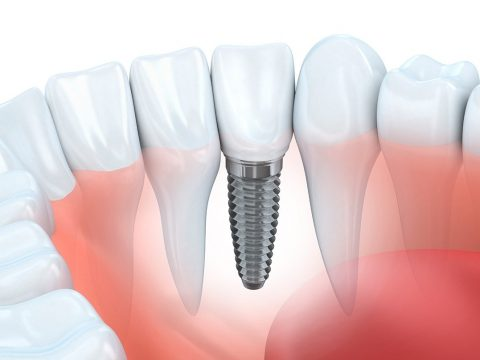 cheap dental implants delaware