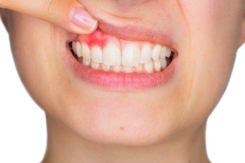 Receding gums delaware