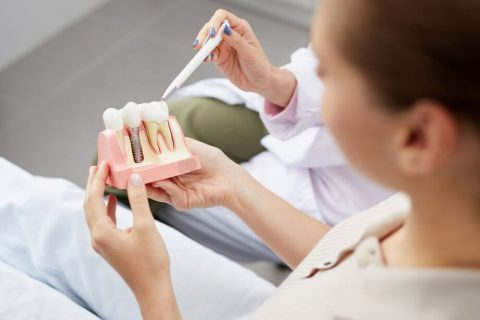 Cost dental Implants