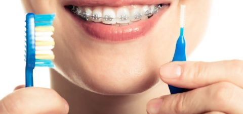 Take care orthodontic treatment